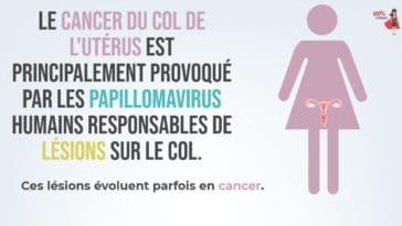 cancer du col utérus effets symptômes