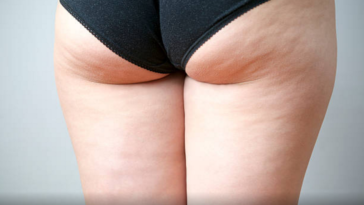 pourquoi on a de la cellulite aliments à éviter