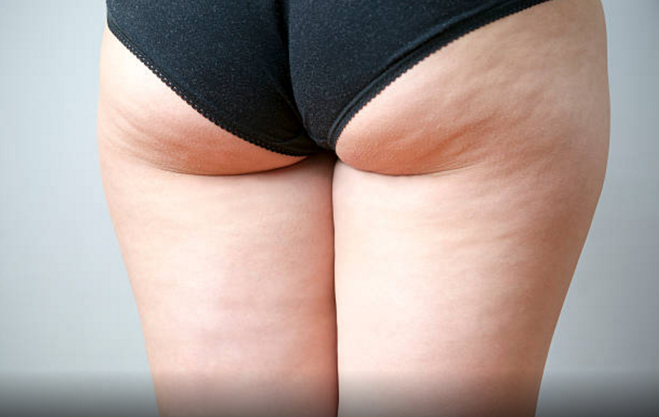 pourquoi on a de la cellulite
