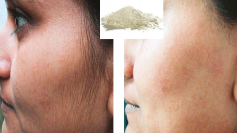 enlever poils du visage