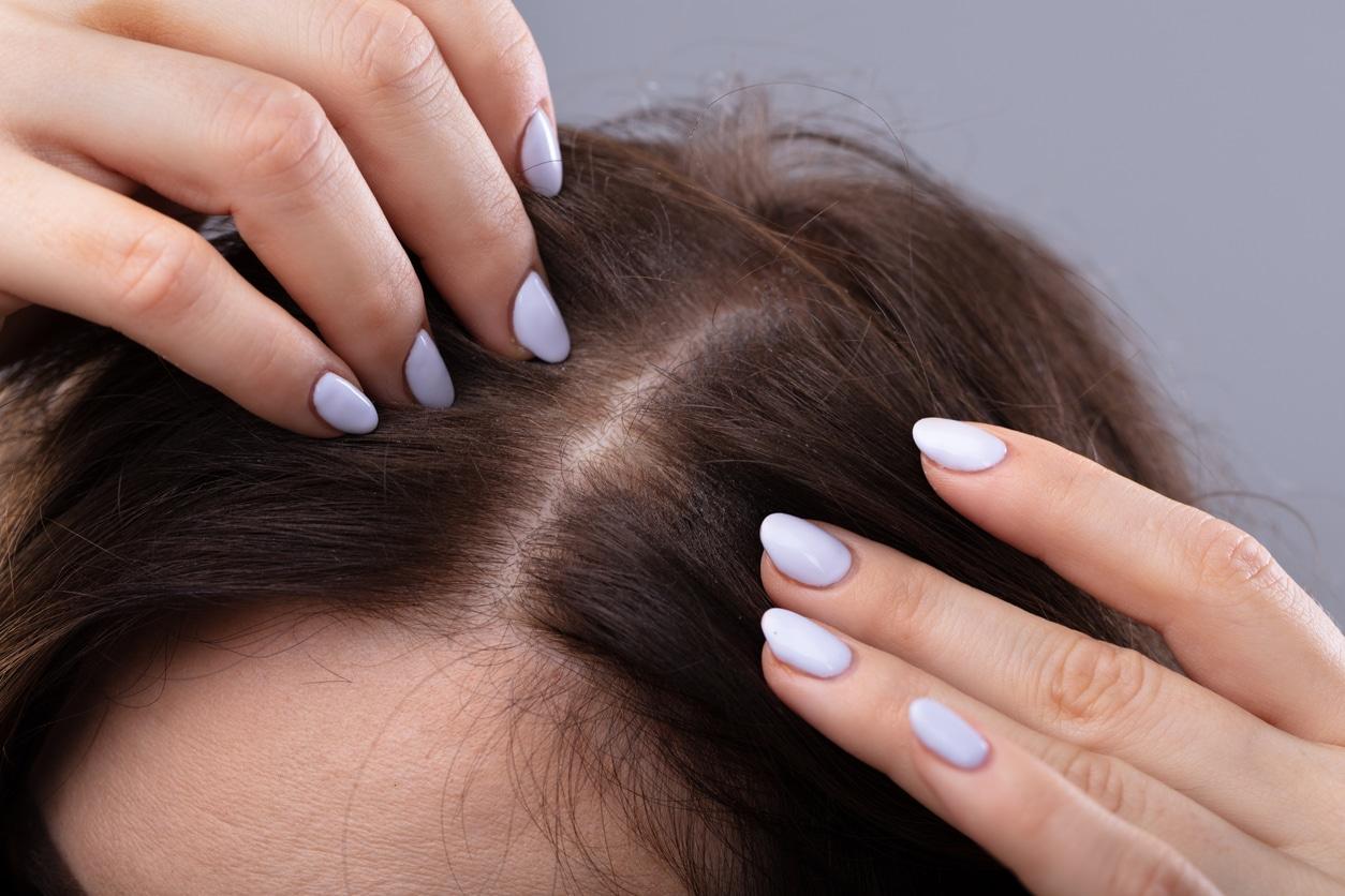 femme chercher pellicules cheveux cuir chevelu