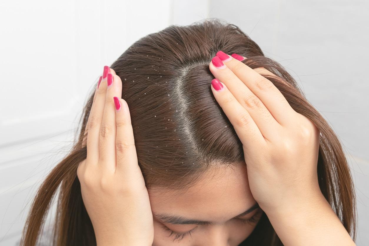 femme chercher pellicules cheveux cuir chevelu astuces