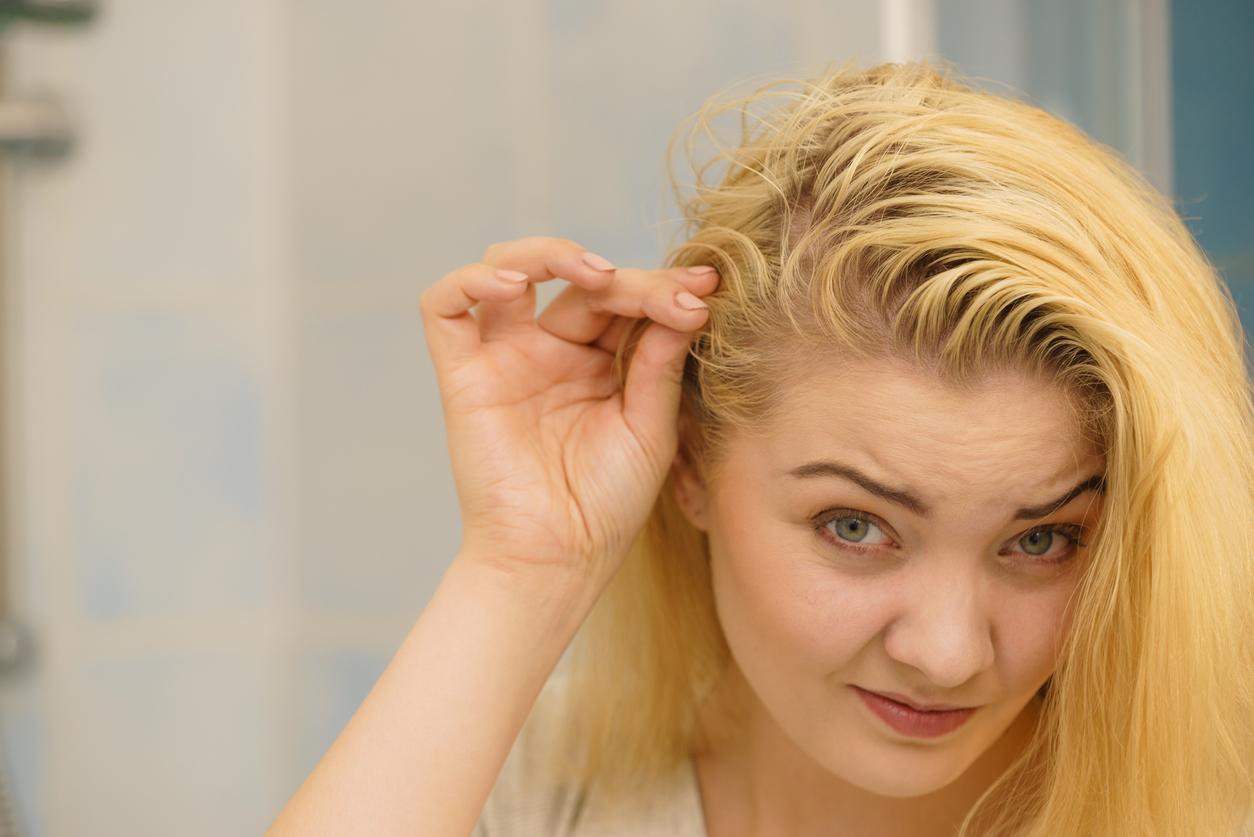 miroir femme cheveux gras blonde sébum cuir chevelu astuces