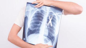 maladie cancer du poumon radio bronches femme fumer