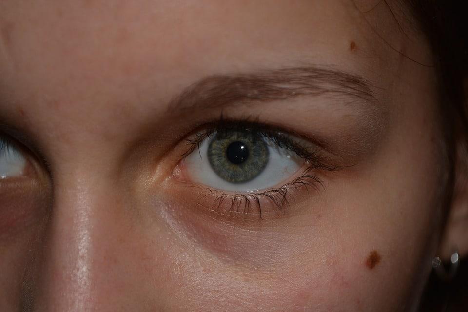 grains de beauté sur le visage