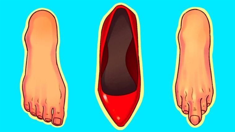 mal aux pieds talons