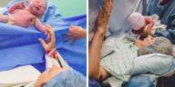 accouchement par césarienne photos