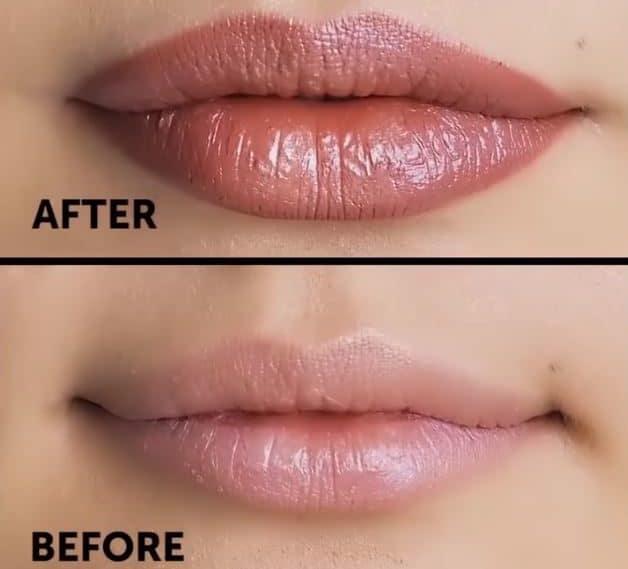 lèvres avant après volume