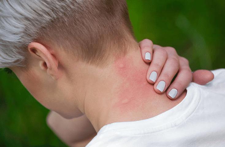 astuces pour combattre les moustiques