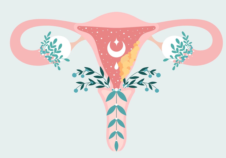 utérus cancer du col vagin parties intimes femme anatomie