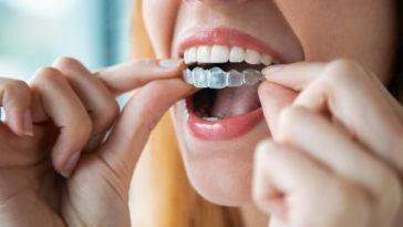 femme gouttière invisible aligner dents appareil dentaire