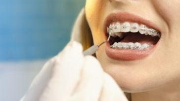 sois dents orthodontie bagues sourire bouche femme