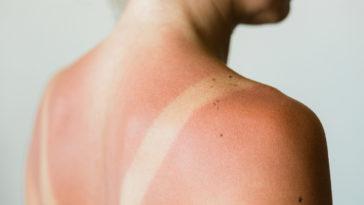 coup de soleil dos femme peau rouge recettes naturelles soulager les coups de soleil