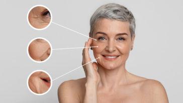 femme âge rides peau visage prévenir astuces